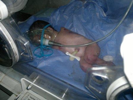 الديوانية : ولادة طفل من دون الاطراف العليا